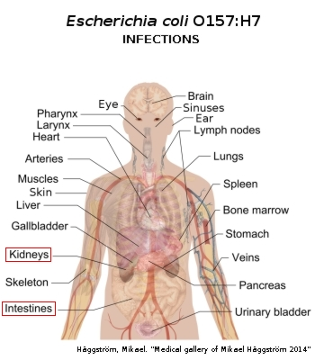E Coli Infections MedlinePlus